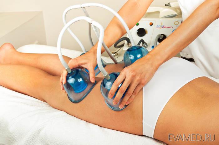 Вакуумный массаж избавит вас от целлюлита в короткие сроки